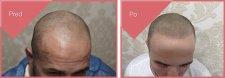 Spoľahlivé riešenie na mužskú plešatosť
